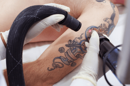 Lazerle Dövme Silme İşlemi