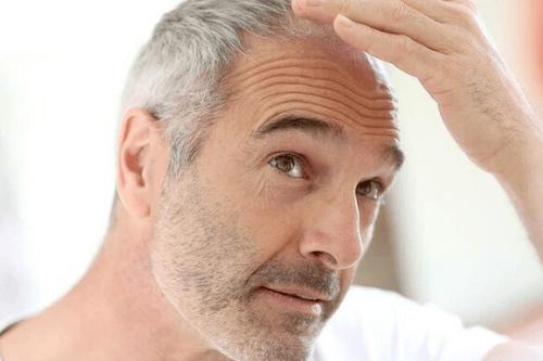 Saç Dökülme Tedavisi Nasıl Yapılır